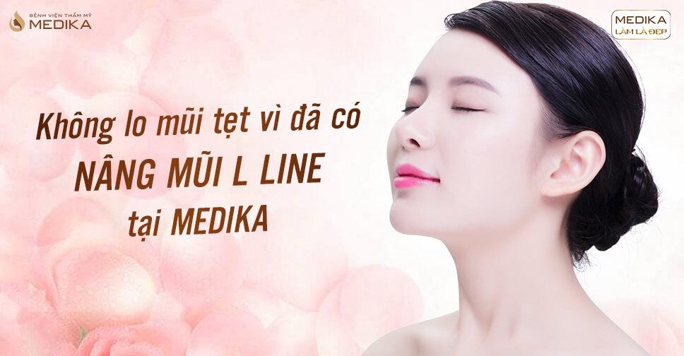 Không lo mũi tẹt vì đã có nâng mũi L line tại MEDIKA.vn