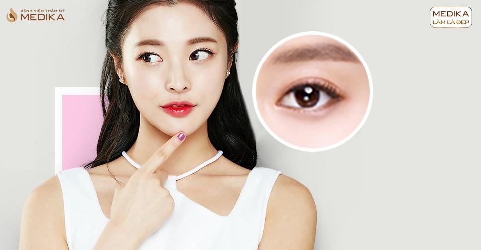 Lấy mỡ mí mắt ở đâu đẹp và chi phí là bao nhiêu?