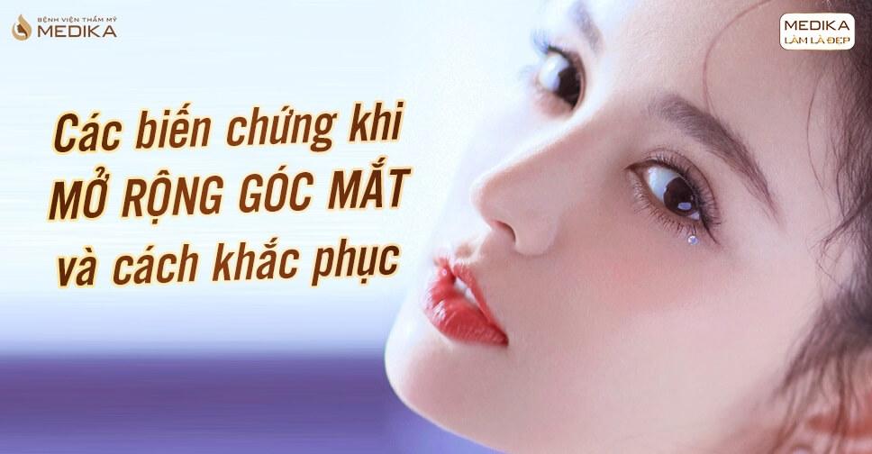 mo-rong-goc-mat-cac-bien-chung-va-cach-khac-phuc
