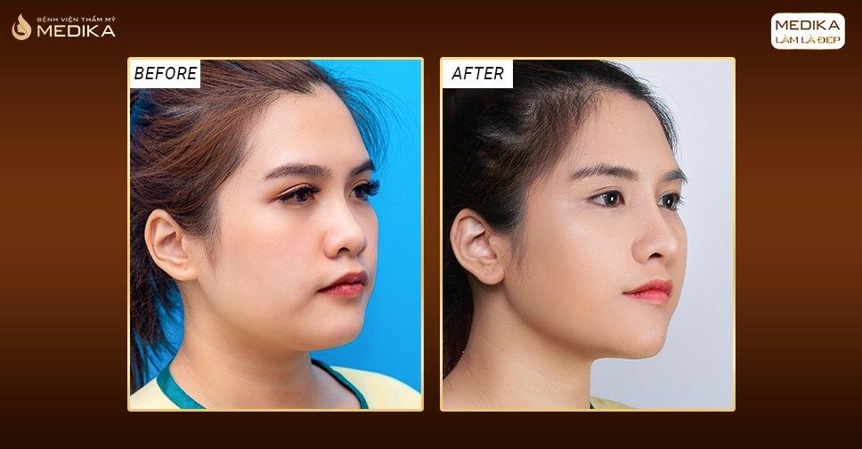 Mũi gãy - Sở hữu dáng mũi cao thẳng bằng phương pháp nâng mũi S line - MEDIKA.vn