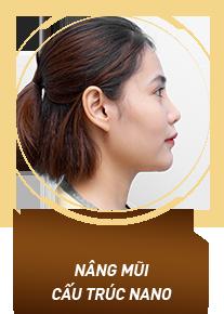 Nâng mũi cấu trúc Nano
