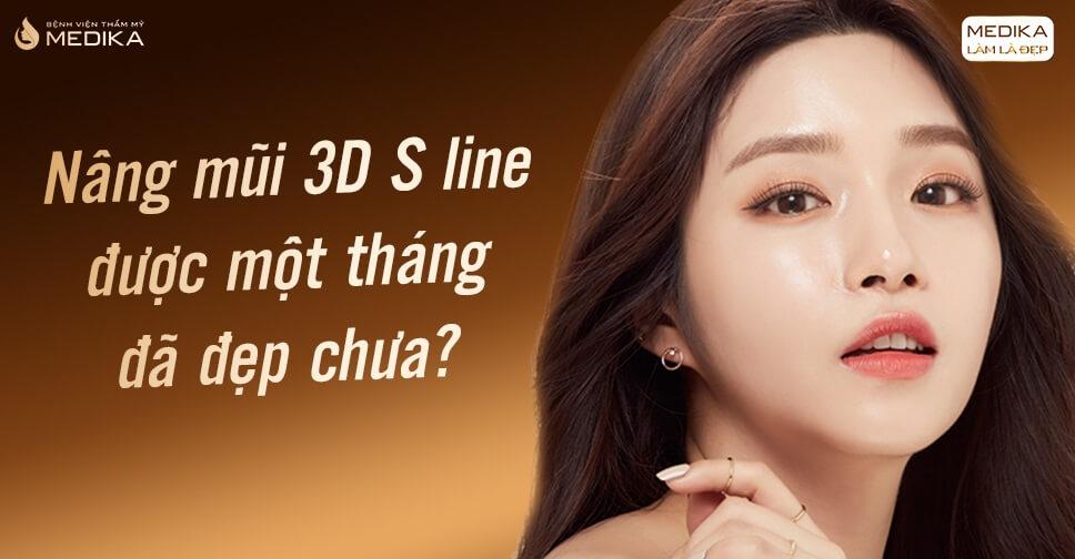 Nâng mũi 3D S line được một tháng đã đẹp chưa? - MEDIKA.vn