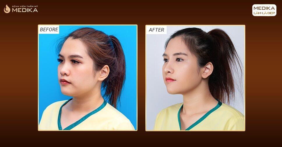 Nâng mũi bọc sụn và 3 sai lầm thường gặp phải - MEDIKA.vn
