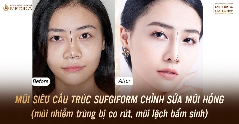 Nâng mũi siêu cấu trúc Surgiform chỉnh sửa mũi hỏng - MEDIKA.vn