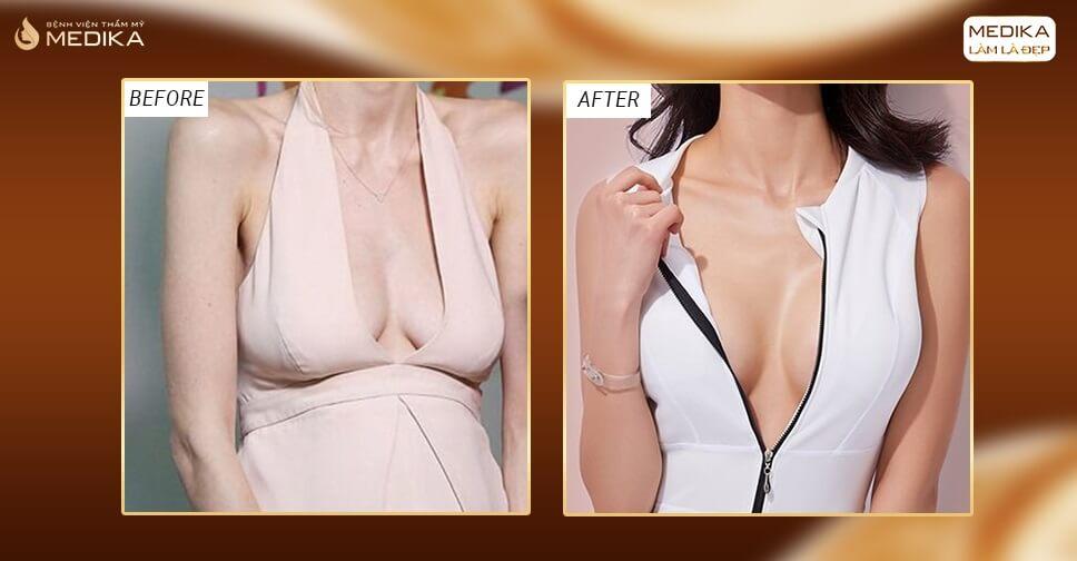 Nâng ngực chảy xệ - Biến hóa ngực đẹp thần kì - MEDIKA.vn