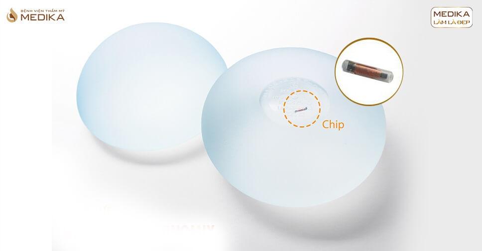 Nâng ngực túi Nano Chip - Bệnh viện thẩm mỹ MEDIKA