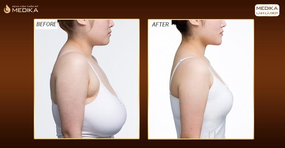 Nâng ngực xệ - Phương pháp nâng bầu ngực nhiệm màu - MEDIKA.vn