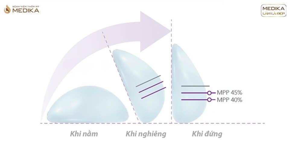 Nâng vòng 1  túi Nano - Bệnh viện thẩm mỹ MEDIKA