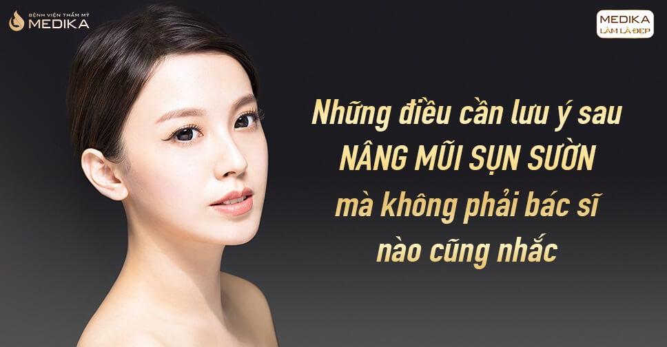 Những lưu ý sau nâng mũi sụn sườn không phải ai cũng nhắc - MEDIKA.vn