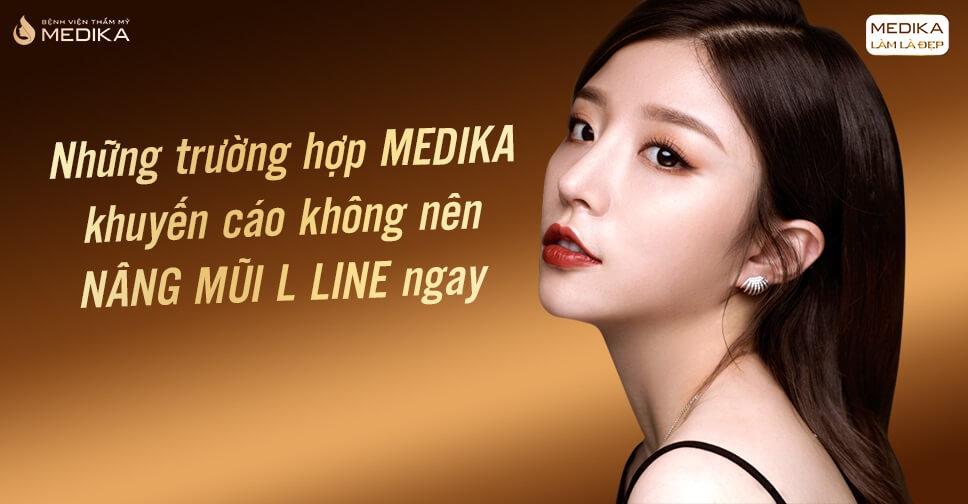 Những trường hợp khuyến cáo không nên nâng mũi L line - MEDIKA.vn