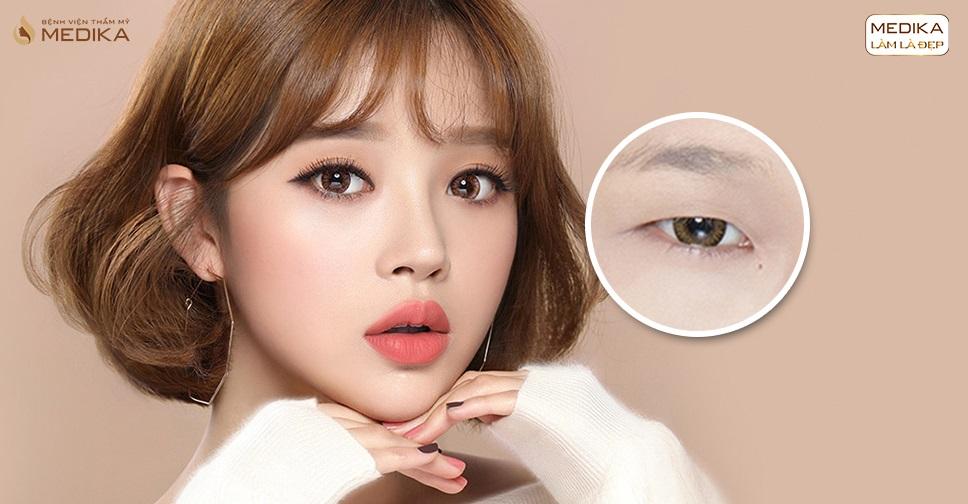 Phẫu thuật mắt to - 60 phút sở hữu mắt to tròn tự nhiên