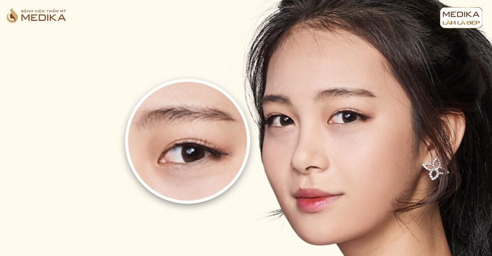 phẫu thuật mắt to cách chăm sóc bạn nên biết