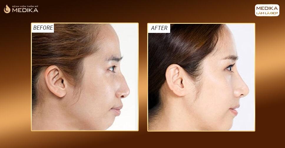 Phẫu thuật nâng mũi đẹp kiêng quan hệ bao lâu? - Bệnh viện thẩm mỹ MEDIKA