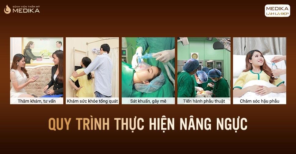 Quy trình nâng ngực túi Nano - MEDIKA.vn