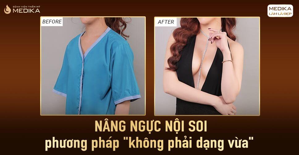 Trãi nghiệm hoàn hảo cho nhiều chị em nâng ngực - MEDIKA.vn