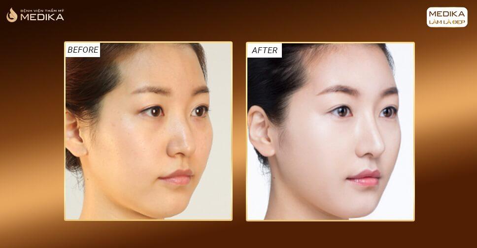 Ứng dụng sụn nâng mũi trong phẫu thuật nâng mũi đẹp - Bệnh viện thẩm mỹ MEDIKA