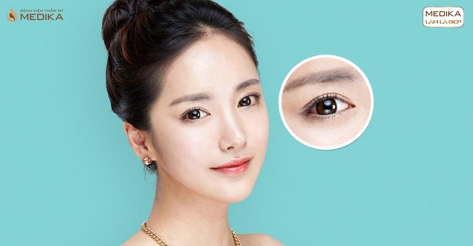 Bấm mí mắt Hàn Quốc bao lâu thì nên bấm lại?