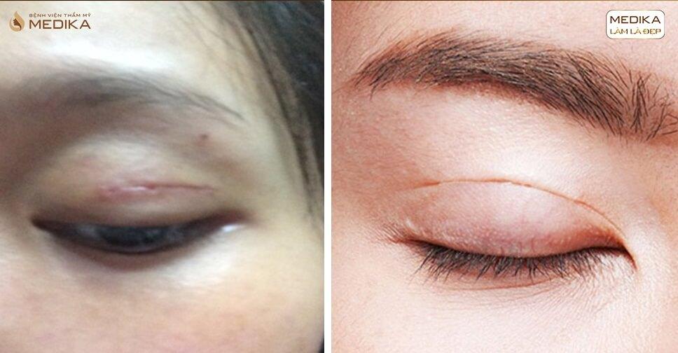 Cắt mí mắt cơ địa xấu có dễ để lại sẹo lồi không?