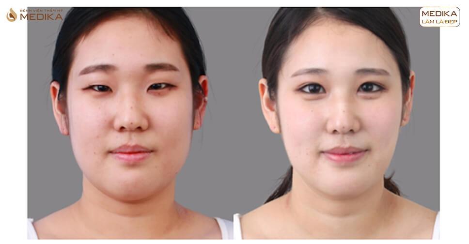 Lấy mỡ mí mắt có cải thiện tình trạng mí mắt sụp?