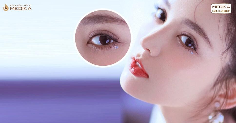 Lấy mỡ mí mắt xong có bấm mí mắt luôn được không?