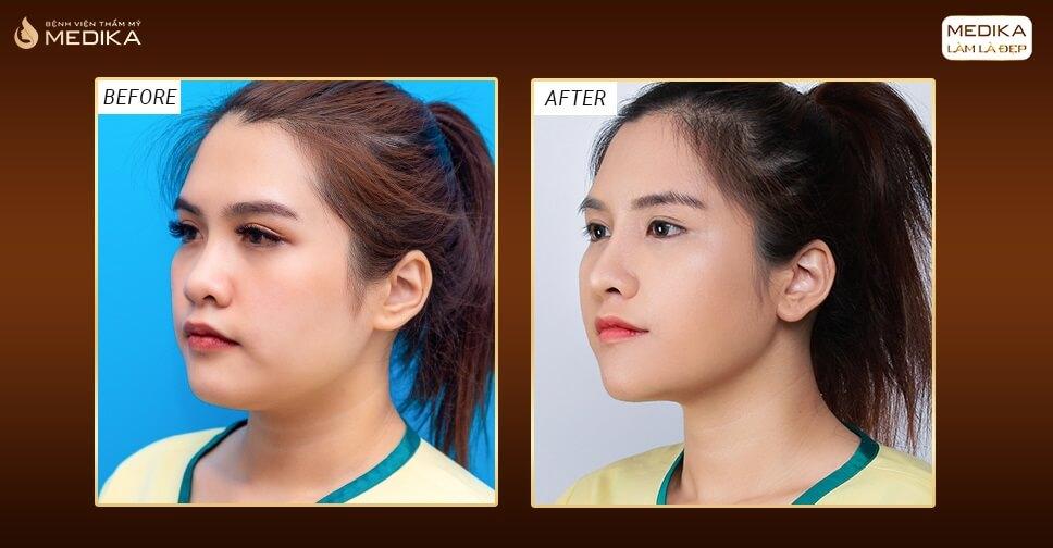 Nâng mũi 3D có phải là lựa chọn hoàn hảo dành cho các chị em? - Bệnh viện thẩm mỹ MEDIKA
