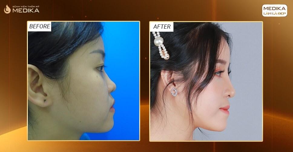 Nâng mũi bọc sụn có giúp đầu mũi được kéo dài? - MEDIKA.vn