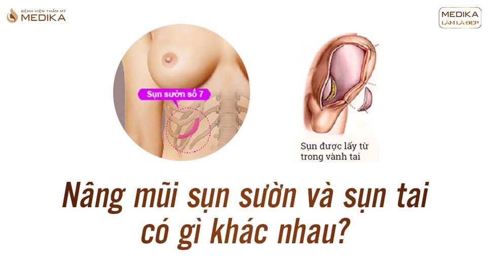 Nâng mũi sụn sườn và sụn tai có gì khác nhau? - Bệnh viện thẩm mỹ MEDIKA