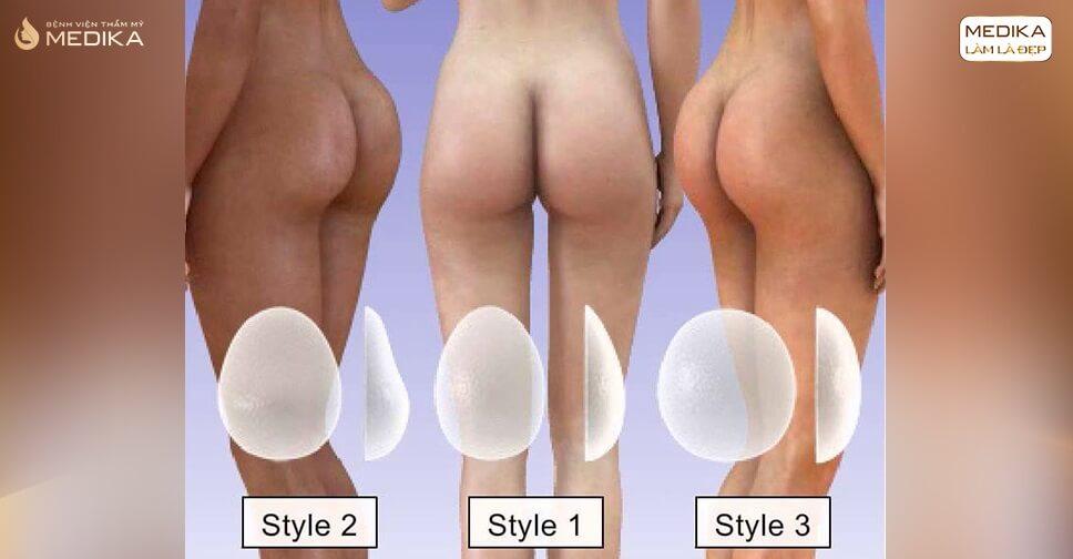 Nâng vòng 3 nội soi tại sao cần lựa chọn size túi độn