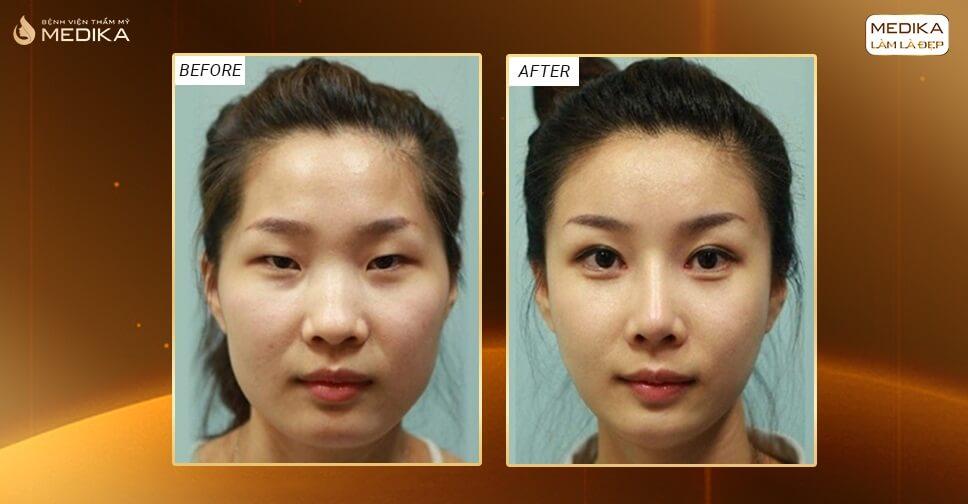 Phẫu thuật mắt to lưu ý để tránh biến chứng