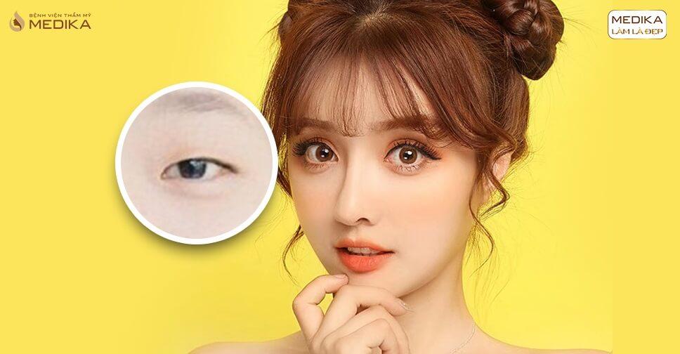 Bấm mí mắt Hàn Quốc khác gì bấm mí thông thường?
