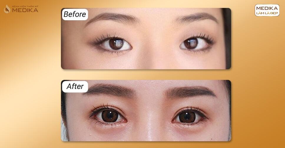 Cắt mắt 2 mí bị hỏng có cắt lại nếp mí được không?