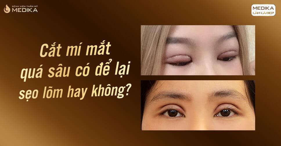 Cắt mắt 2 mí quá sâu có để lại sẹo lõm hay không?