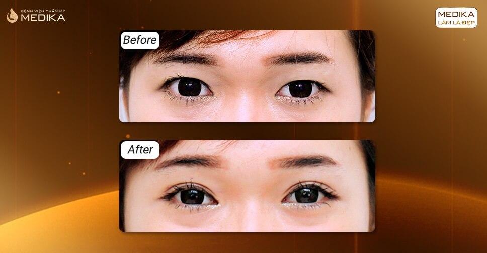 Cắt mắt hai mí làm sao mắt đẹp tự nhiên không đơ cứng?