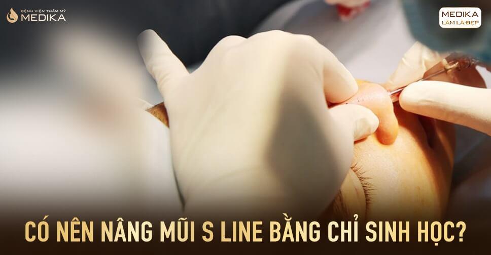 Có nên nâng mũi S line bằng chỉ sinh học Ở Bệnh viện thẩm mỹ MEDIKA?