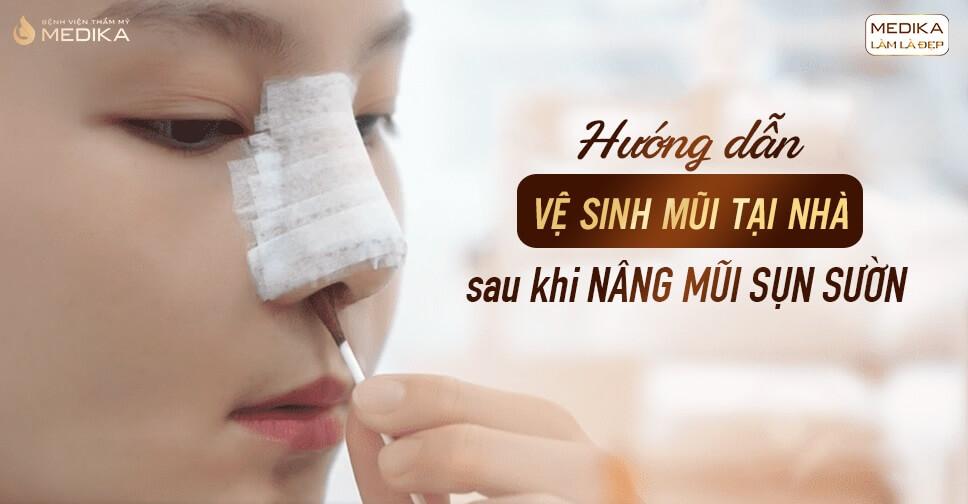 Hướng dẫn vệ sinh mũi tại nhà sau khi nâng mũi sụn sườn - Bệnh viện thẩm mỹ MEDIKA