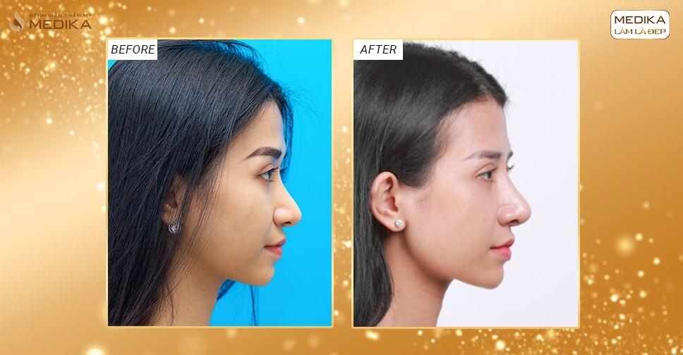 Khách hàng chia sẻ nâng mũi bằng sụn tự thân làm cuộc đời viên mãn hơn - Bệnh viện thẩm mỹ MEDIKA