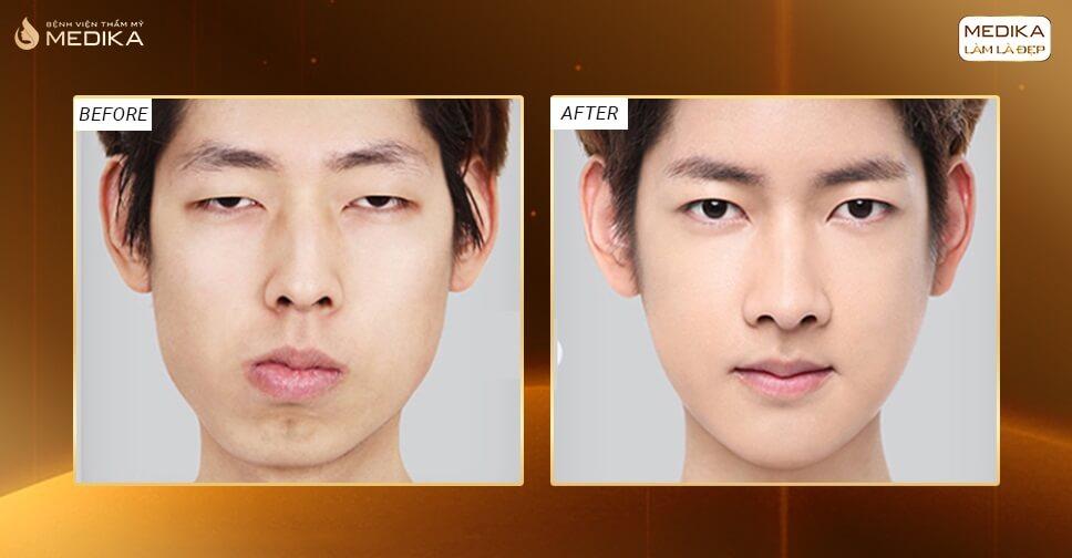 Lấy mỡ mí mắt có nên áp dụng cho nam giới?
