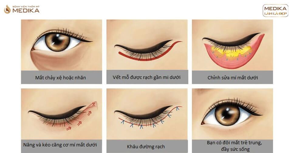 Lấy mỡ mí mắt giải pháp hoàn hảo cho mắt sụp mí