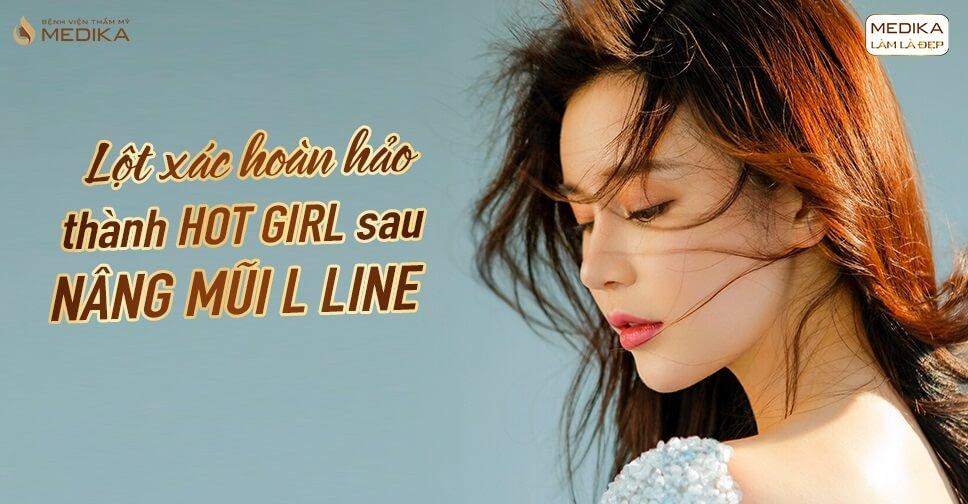 Lột xác hoàn hảo thành HOT GIRL sau nâng mũi L line ở Bệnh viện thẩm mỹ MEDIKA