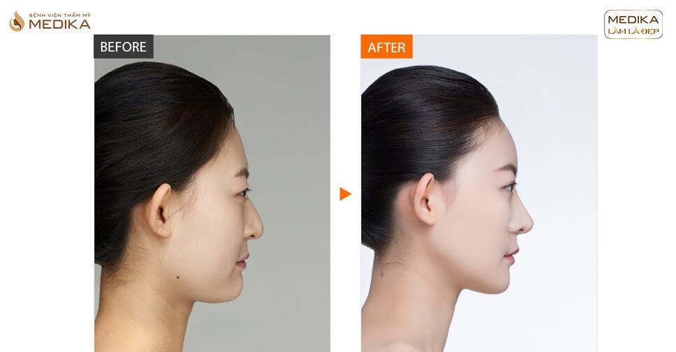 Lột xác hoàn hảo thành HOT GIRL sau nâng mũi L line tại Bệnh viện thẩm mỹ MEDIKA