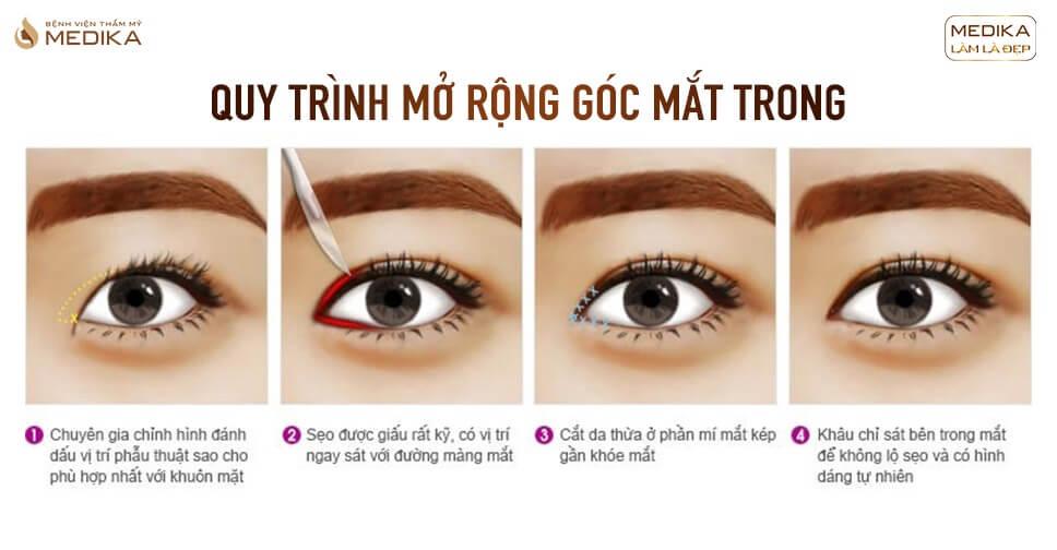 Mở rộng góc mắt trong có cải thiện mắt một mí?