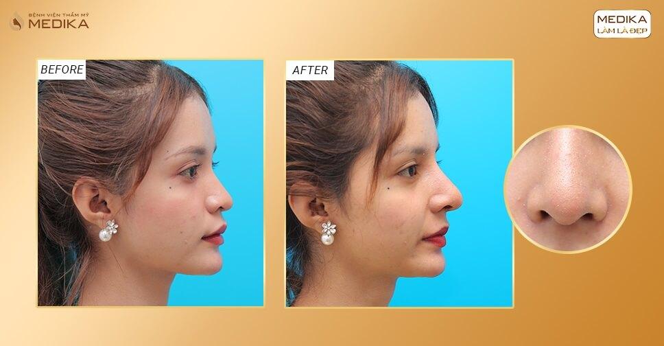 Nâng mũi bằng sụn sườn có phải là giải pháp nâng mũi an toàn? - Bệnh viện thẩm mỹ MEDIKA