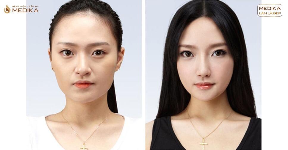 Nâng mũi kết hợp thu nhỏ đầu mũi biến hóa mũi mỹ nhân - MEDIKA.vn