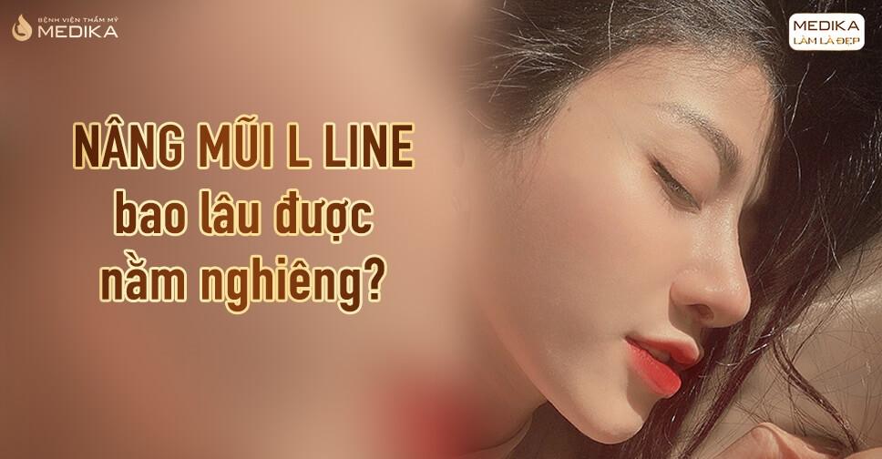 Nâng mũi L line bao lâu được nằm nghiêng? - Tại Bệnh viện thẩm mỹ MEDIKA