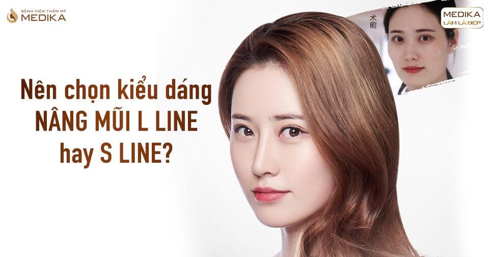 Nên chọn kiểu dáng nâng mũi L line hay S line? - Bệnh viện thẩm mỹ MEDIKA