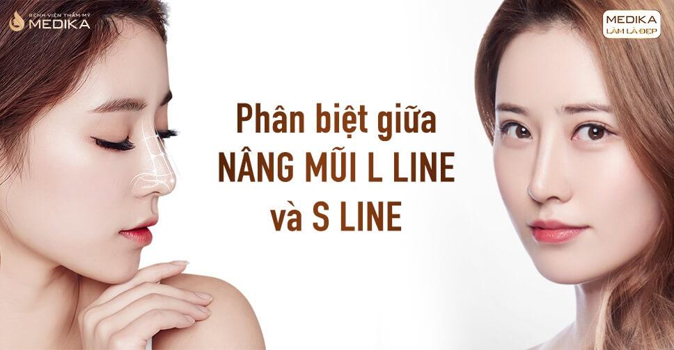 Phân biệt giữa nâng mũi L line và S line - Bệnh viện thẩm mỹ MEDIKA