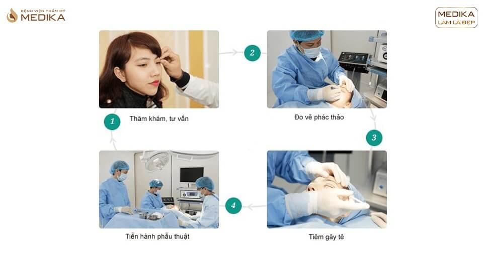 Phẫu thuật mắt to tìm hiểu các kĩ thuật thực hiện