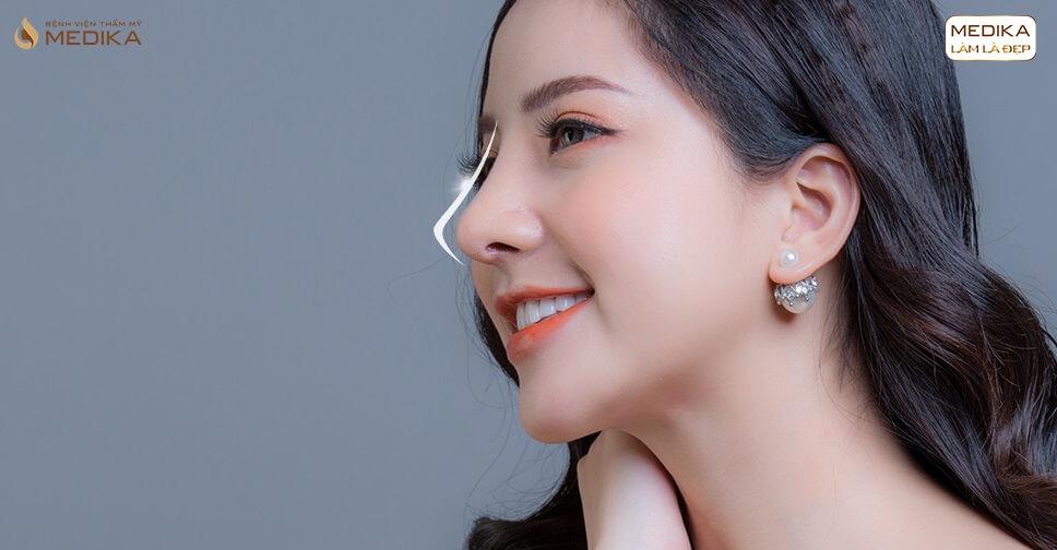 Phẫu thuật nâng mũi L line cho nam an toàn nam tính - MEDIKA.vn