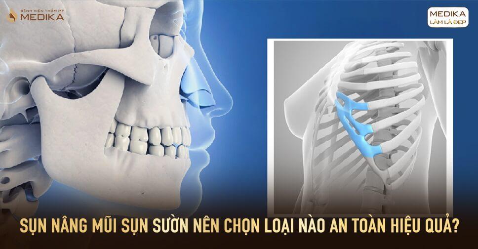 Sụn nâng mũi sụn sườn nên chọn loại nào an toàn hiệu quả tại Bệnh viện thẩm mỹ MEDIKA?