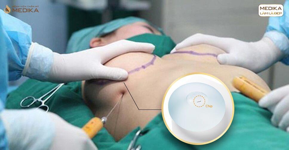 Tại sao khách hàng yêu thích túi Nano Chip khi nâng ngực? - Bệnh viện thẩm mỹ MEDIKA